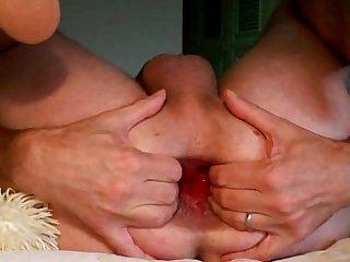 Anal fist toy insertion gape ass play analdehner ass hole extrem gay men